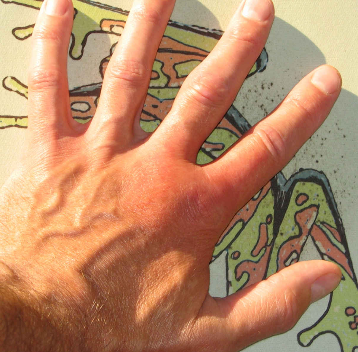 What Do Itchy and Swollen Fingers Indicate? | Skin Itching ...